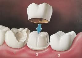 Estetica Dentale Protesi Fisse Treviso Veneto Studio